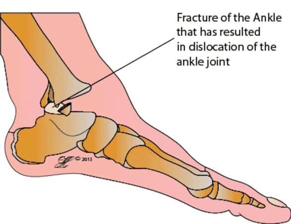 di ankle fracture dislocation 650